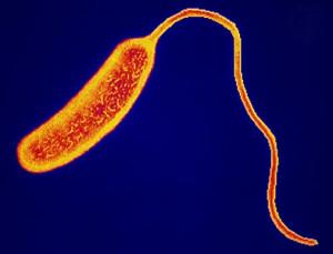 vibrio-cholerae