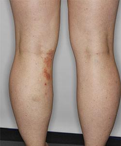 vericose-eczema-pre-img1